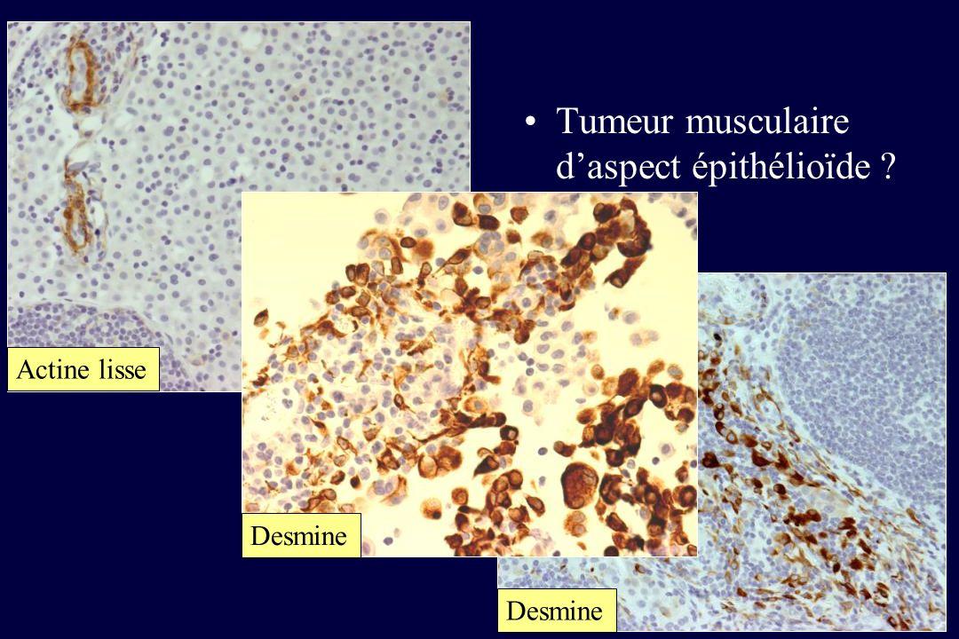 Actine lisse Desmine Tumeur musculaire daspect épithélioïde ? Desmine