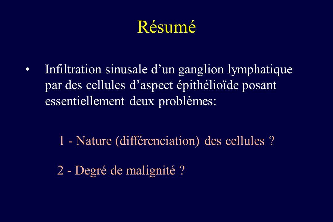 Résumé Infiltration sinusale dun ganglion lymphatique par des cellules daspect épithélioïde posant essentiellement deux problèmes: 2 - Degré de malign