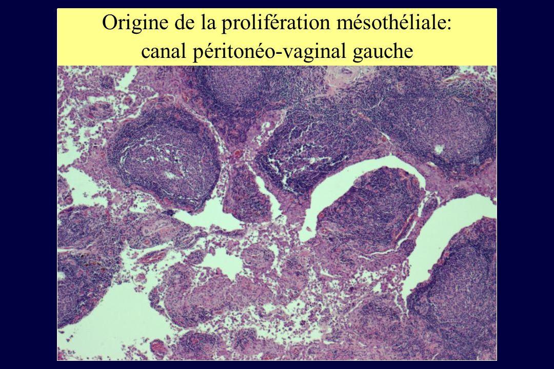 Origine de la prolifération mésothéliale: canal péritonéo-vaginal gauche