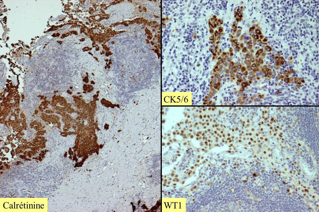 Calrétinine CK5/6WT1