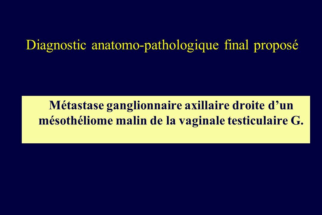 Diagnostic anatomo-pathologique final proposé Métastase ganglionnaire axillaire droite dun mésothéliome malin de la vaginale testiculaire G.