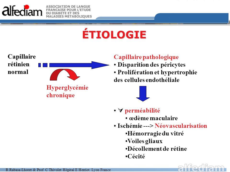 R Rabasa-Lhoret & Prof C Thivolet Hôpital E Herriot. Lyon France ÉTIOLOGIE Capillairerétiniennormal Capillaire pathologique Disparition des péricytes