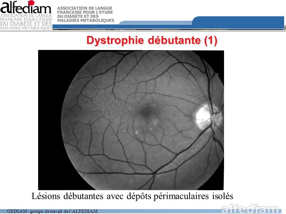 GEDIAM - groupe de travail de lALFEDIAM Dystrophie débutante (1) Lésions débutantes avec dépôts périmaculaires isolés