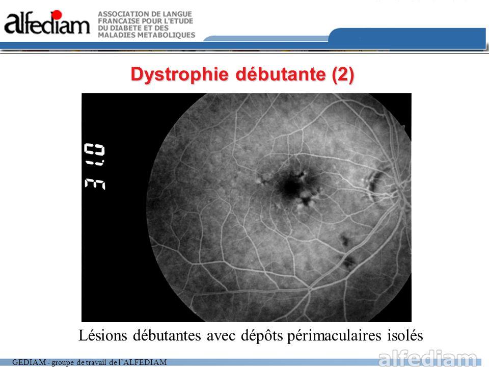 GEDIAM - groupe de travail de lALFEDIAM Dystrophie débutante (2) Lésions débutantes avec dépôts périmaculaires isolés