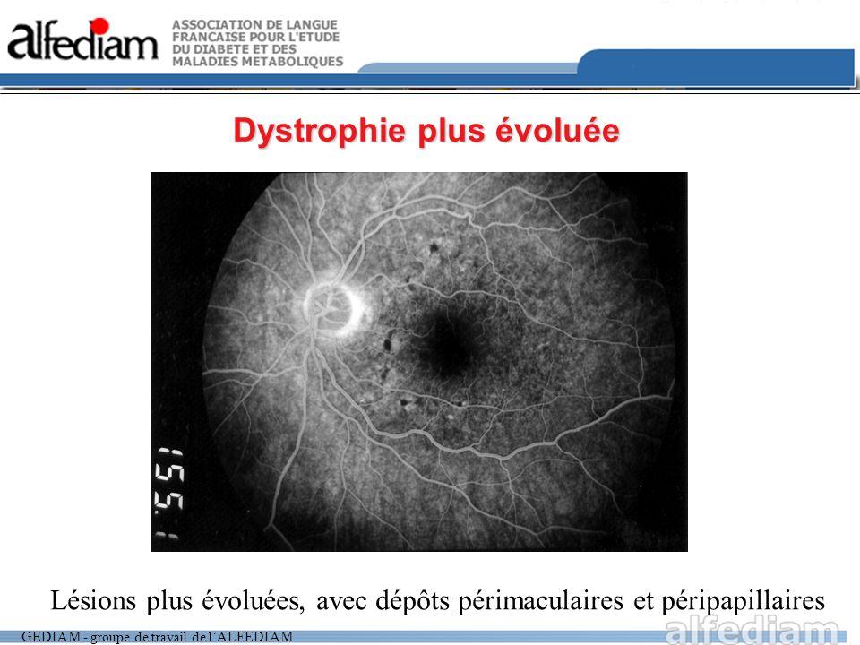 GEDIAM - groupe de travail de lALFEDIAM Dystrophie plus évoluée Lésions plus évoluées, avec dépôts périmaculaires et péripapillaires