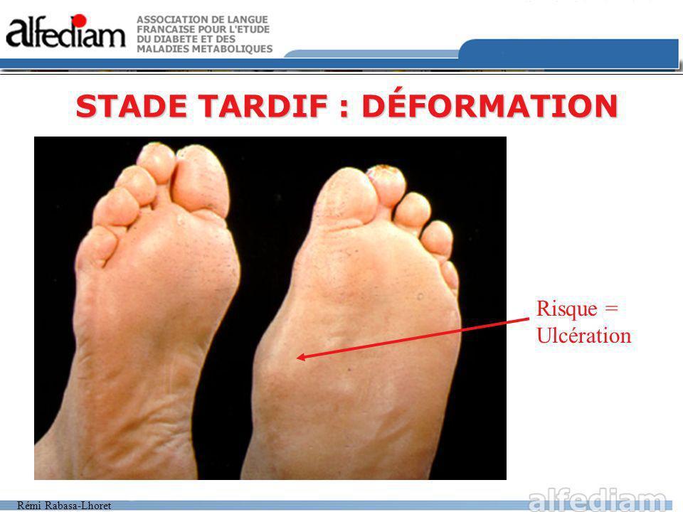 Rémi Rabasa-Lhoret STADE TARDIF : DÉFORMATION Risque = Ulcération