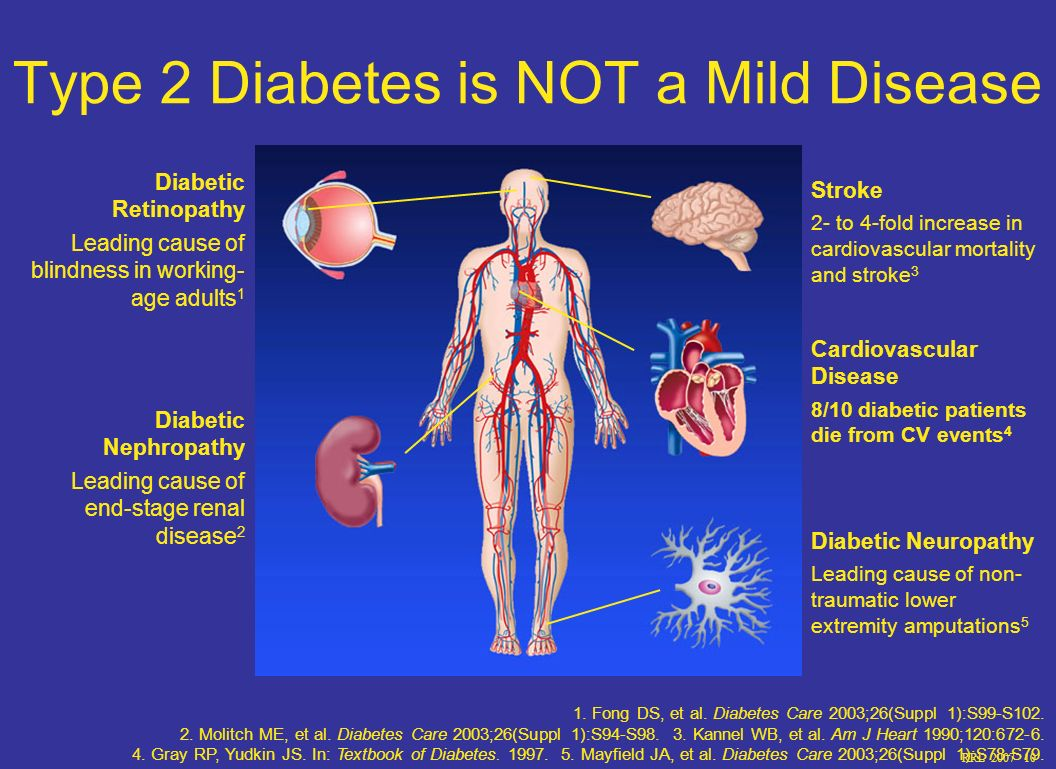 RRL 2007 10 Type 2 Diabetes is NOT a Mild Disease Stroke 2- to 4-fold increase in cardiovascular mortality and stroke 3 Cardiovascular Disease 8/10 diabetic patients die from CV events 4 Diabetic Neuropathy Leading cause of non- traumatic lower extremity amputations 5 Diabetic Retinopathy Leading cause of blindness in working- age adults 1 Diabetic Nephropathy Leading cause of end-stage renal disease 2 1.