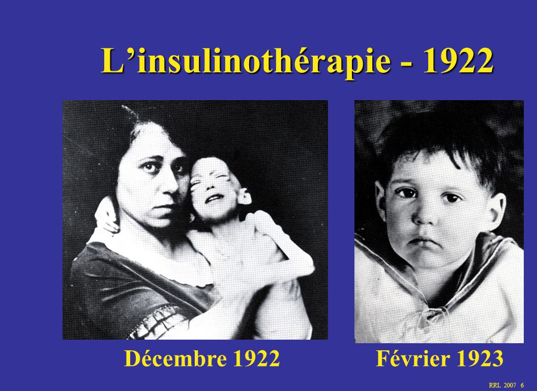RRL 2007 6 Linsulinothérapie - 1922 Décembre 1922Février 1923