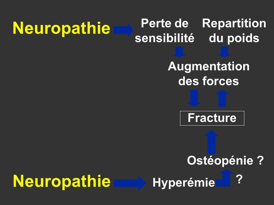 Fracture Ostéopénie ? Perte de sensibilité Repartition du poids Augmentation des forces Hyperémie Neuropathie ?