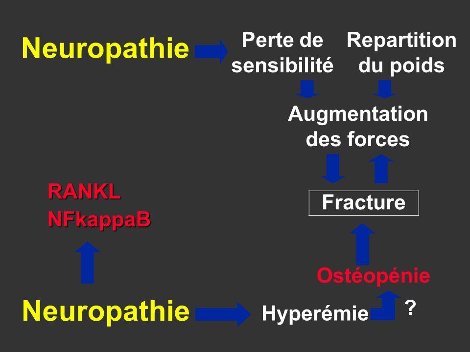 Fracture Ostéopénie Perte de sensibilité Repartition du poids Augmentation des forces Hyperémie Neuropathie ? RANKLNFkappaB