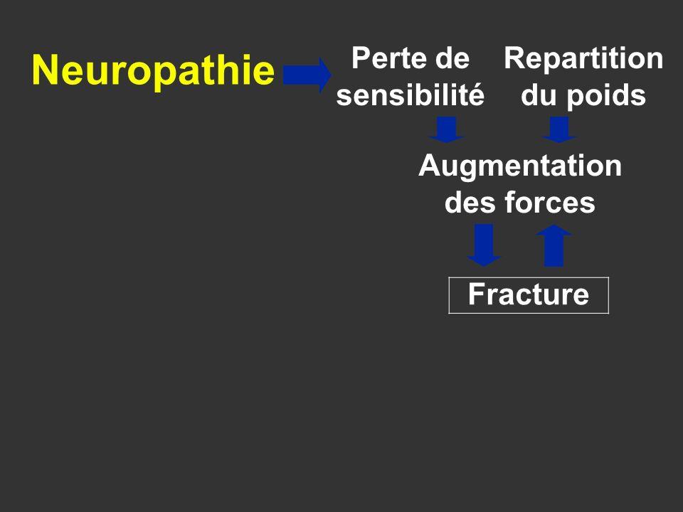 Fracture INFLAMMATION TNF- IL-1 RANKLNFkappaB Formation des ostoclastes Formation des ostéoclastes Osteopénie Charcot aigu Perte de sensibilité Repartition du poids Augmentation des forces Hyperémie