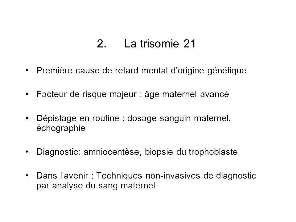 2.La trisomie 21 Première cause de retard mental dorigine génétique Facteur de risque majeur : âge maternel avancé Dépistage en routine : dosage sangu