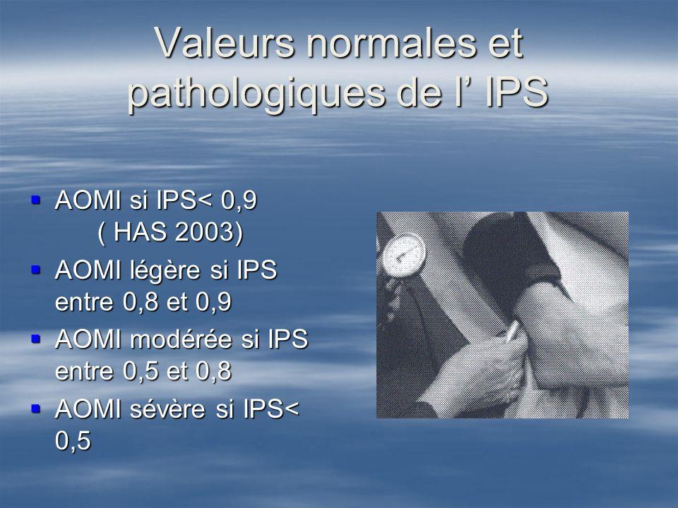 Valeurs normales et pathologiques de l IPS AOMI si IPS< 0,9 ( HAS 2003) AOMI si IPS< 0,9 ( HAS 2003) AOMI légère si IPS entre 0,8 et 0,9 AOMI légère s