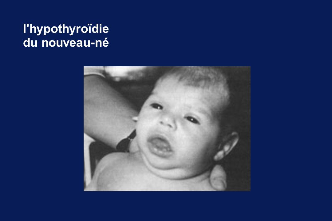 l'hypothyroïdie du nouveau-né