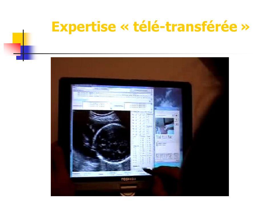 Expertise « télé-transférée »