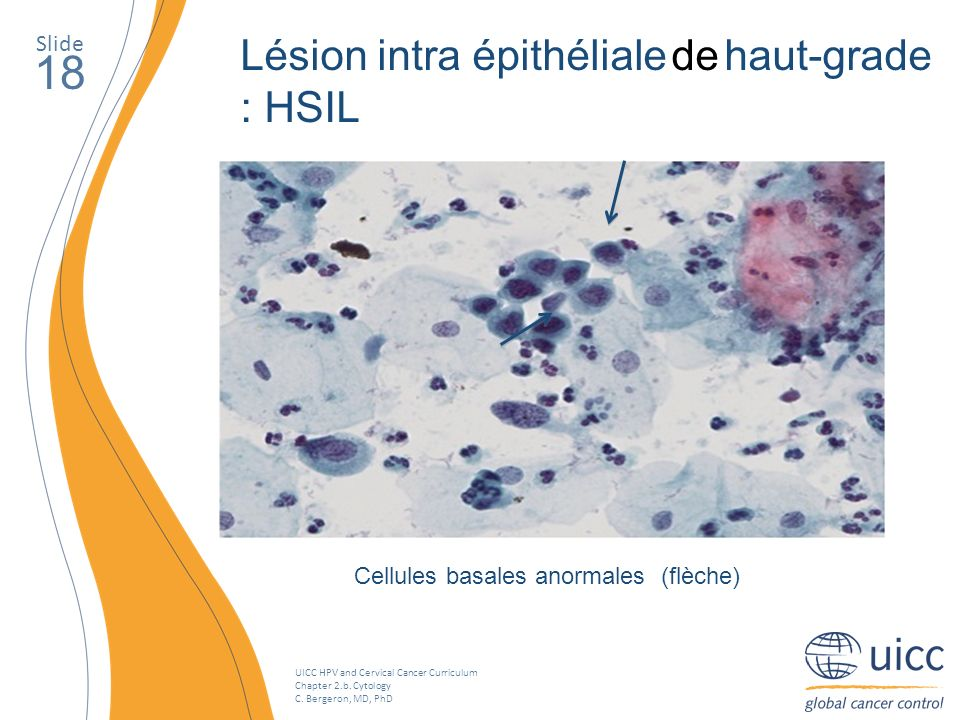 UICC HPV and Cervical Cancer Curriculum Chapter 2.b. Cytology C. Bergeron, MD, PhD Slide 18 Lésion intra épithéliale de haut-grade : HSIL Cellules bas