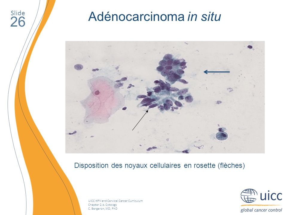 UICC HPV and Cervical Cancer Curriculum Chapter 2.b. Cytology C. Bergeron, MD, PhD Slide 26 Adénocarcinoma in situ Disposition des noyaux cellulaires