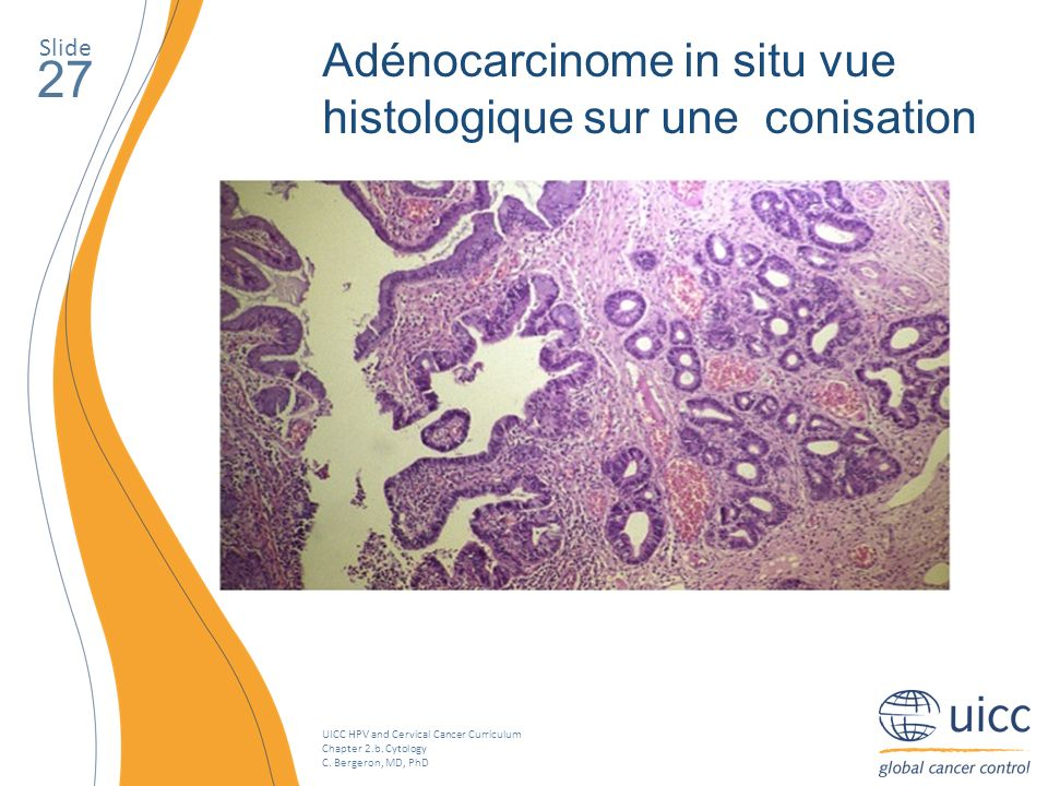UICC HPV and Cervical Cancer Curriculum Chapter 2.b. Cytology C. Bergeron, MD, PhD Slide 27 Adénocarcinome in situ vue histologique sur une conisation