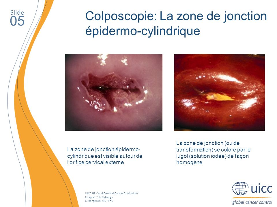 UICC HPV and Cervical Cancer Curriculum Chapter 2.b. Cytology C. Bergeron, MD, PhD Slide 05 La zone de jonction épidermo- cylindrique est visible auto