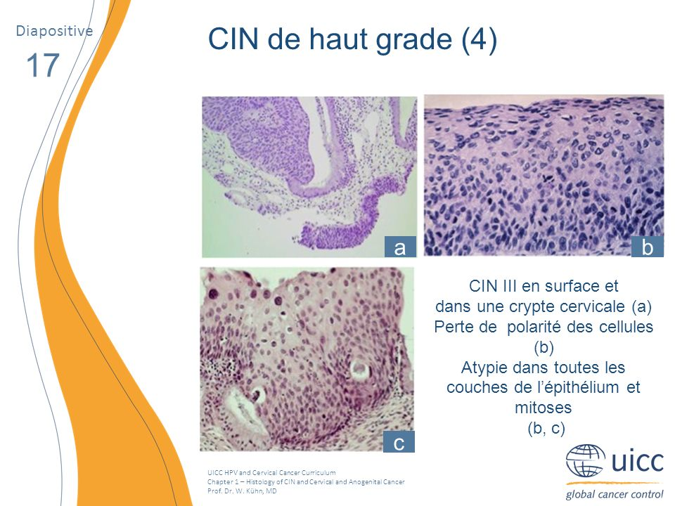 UICC HPV and Cervical Cancer Curriculum Chapter 1 – Histology of CIN and Cervical and Anogenital Cancer Prof. Dr. W. Kühn, MD Diapositive 17 CIN de ha