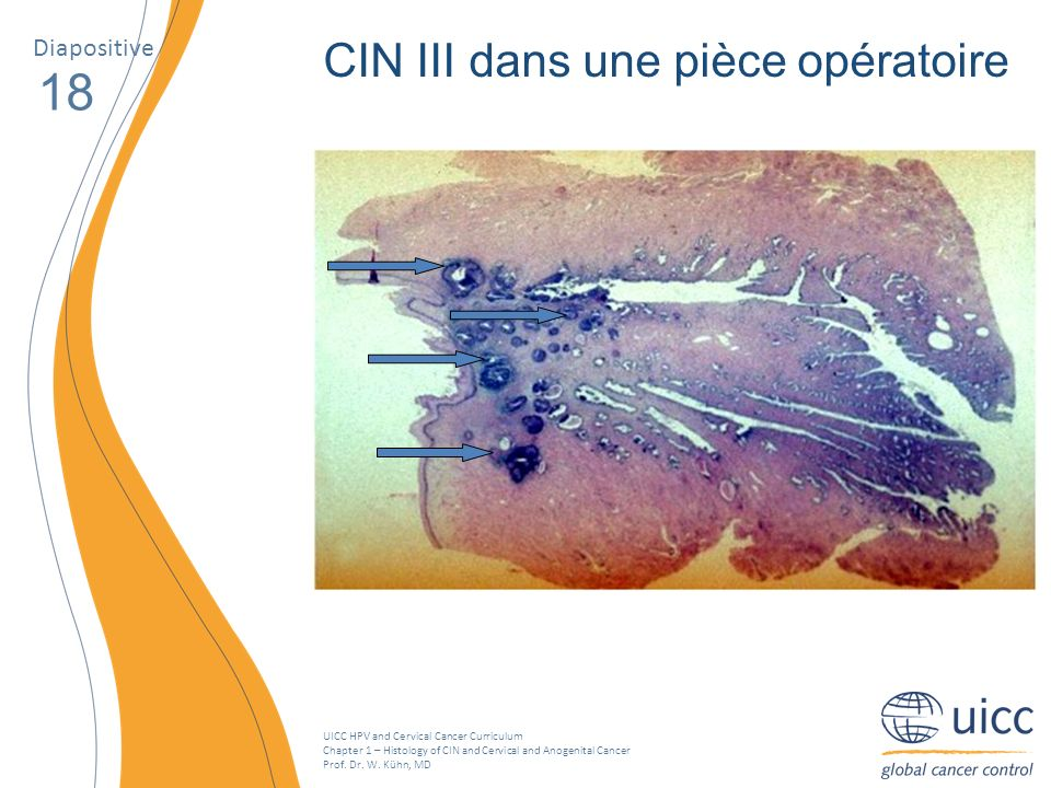 UICC HPV and Cervical Cancer Curriculum Chapter 1 – Histology of CIN and Cervical and Anogenital Cancer Prof. Dr. W. Kühn, MD Diapositive 18 CIN III d
