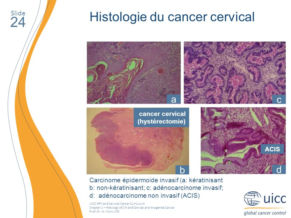 UICC HPV and Cervical Cancer Curriculum Chapter 1 – Histology of CIN and Cervical and Anogenital Cancer Prof. Dr. W. Kühn, MD Slide 24 Histologie du c