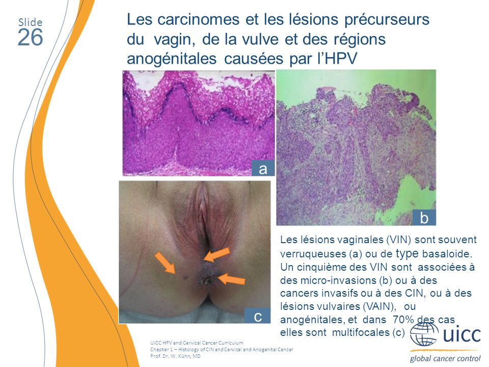 UICC HPV and Cervical Cancer Curriculum Chapter 1 – Histology of CIN and Cervical and Anogenital Cancer Prof. Dr. W. Kühn, MD Slide 26 Les carcinomes