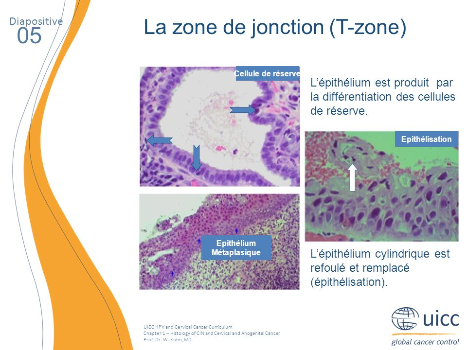 UICC HPV and Cervical Cancer Curriculum Chapter 1 – Histology of CIN and Cervical and Anogenital Cancer Prof. Dr. W. Kühn, MD La zone de jonction (T-z