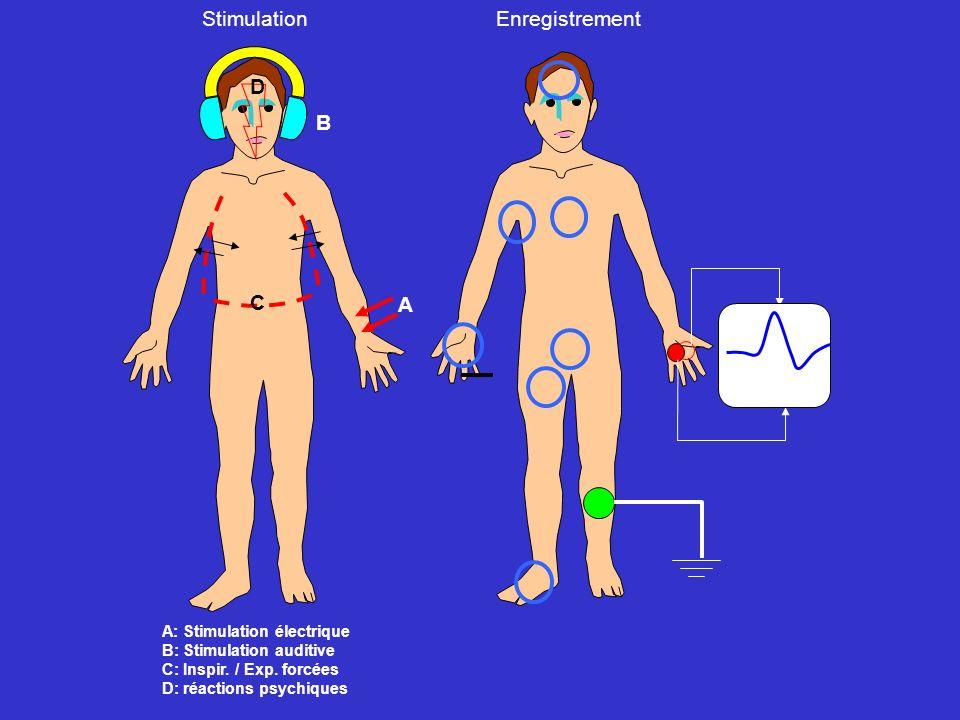A B C D StimulationEnregistrement A: Stimulation électrique B: Stimulation auditive C: Inspir. / Exp. forcées D: réactions psychiques figure 2