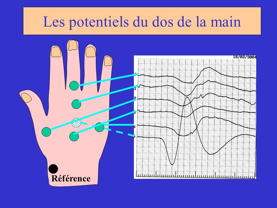 Référence Les potentiels du dos de la main