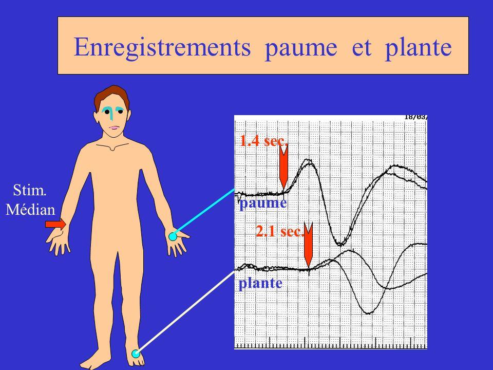 Enregistrements paume et plante paume plante Stim. Médian 1.4 sec. 2.1 sec.