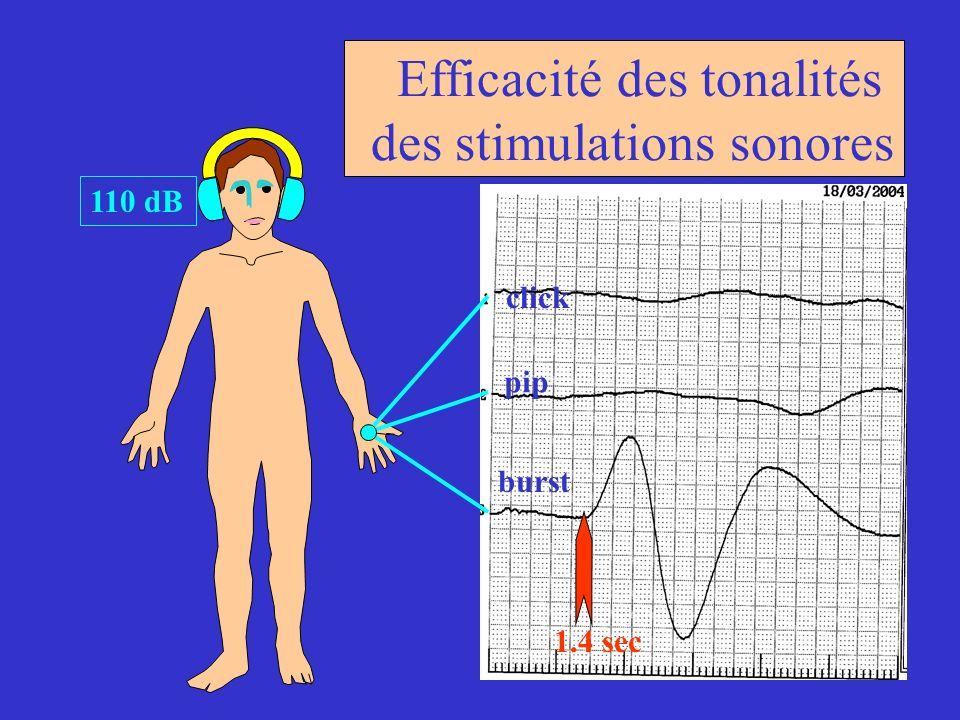 Efficacité des tonalités des stimulations sonores 110 dB click pip burst 1.4 sec