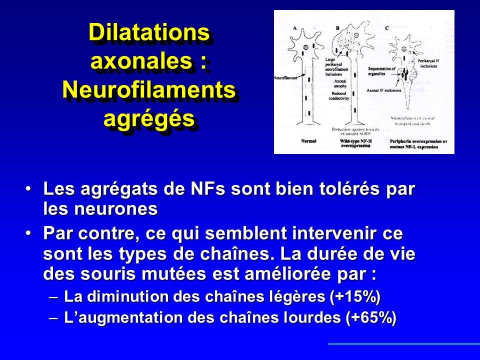 Dilatations axonales : Neurofilaments agrégés Les agrégats de NFs sont bien tolérés par les neuronesLes agrégats de NFs sont bien tolérés par les neur