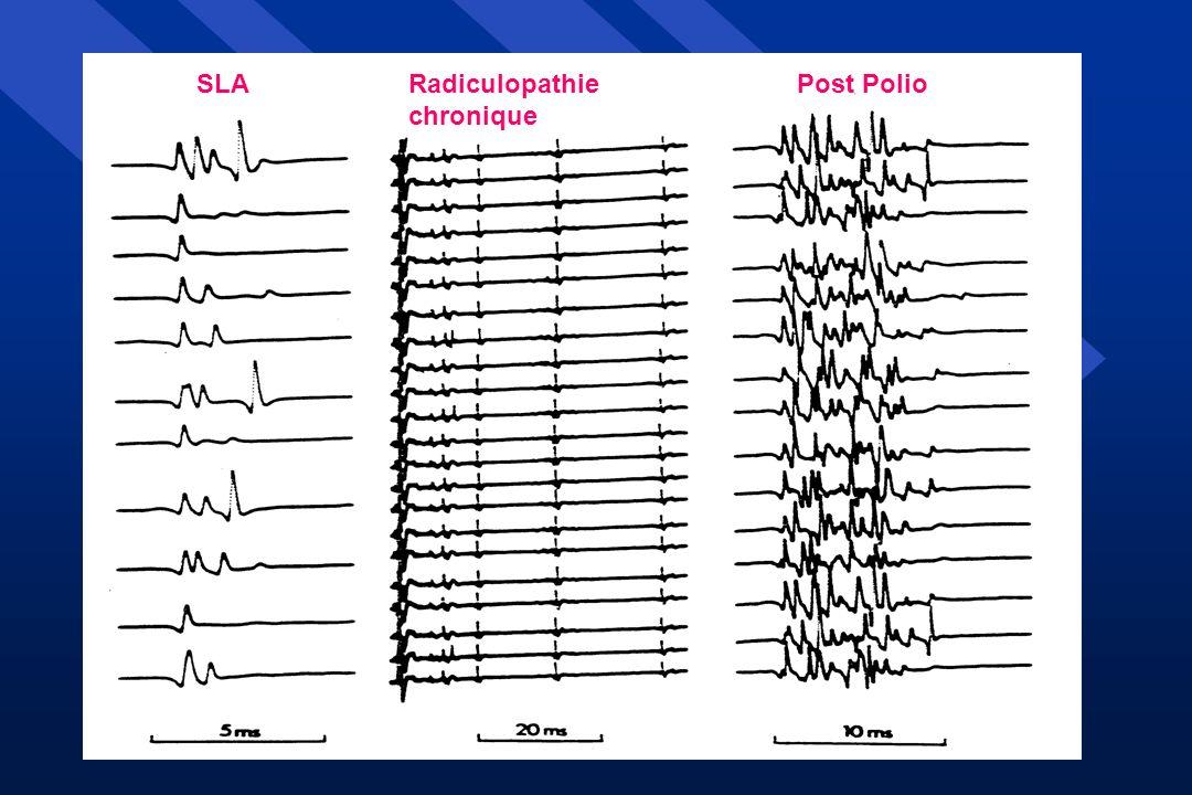 PYRIDOSTIGMINE Jonction neuro-musculaire : transmission « défaillante » Étude ouverte 180 mg/j : efficacité [Trojan, 1995] Étude double aveugle (27 patients) : efficacité [Seijert, 1994] Étude multicentrique double aveugle [Trojan, 1999] 126 patients (180 mg/j) : Pas de différences Force Fatigue Qualité de vie IGF1 sérique