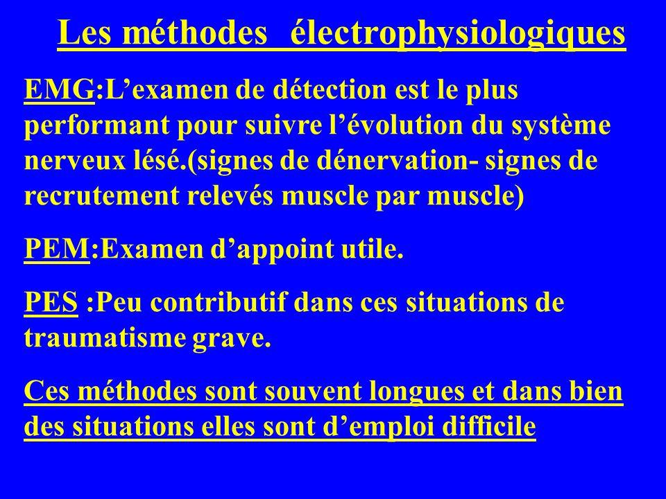 Les méthodes électrophysiologiques EMG:Lexamen de détection est le plus performant pour suivre lévolution du système nerveux lésé.(signes de dénervati