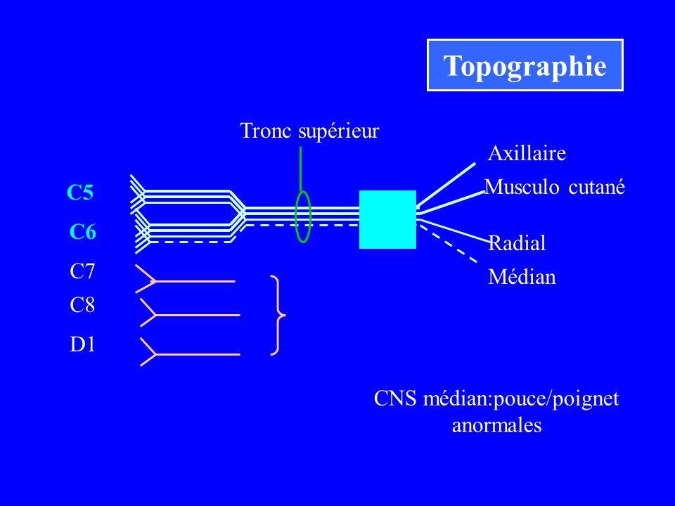 C5 C6 Musculo cutané Axillaire C7 C8 D1 CNS médian:pouce/poignet anormales Tronc supérieur Radial Médian Topographie