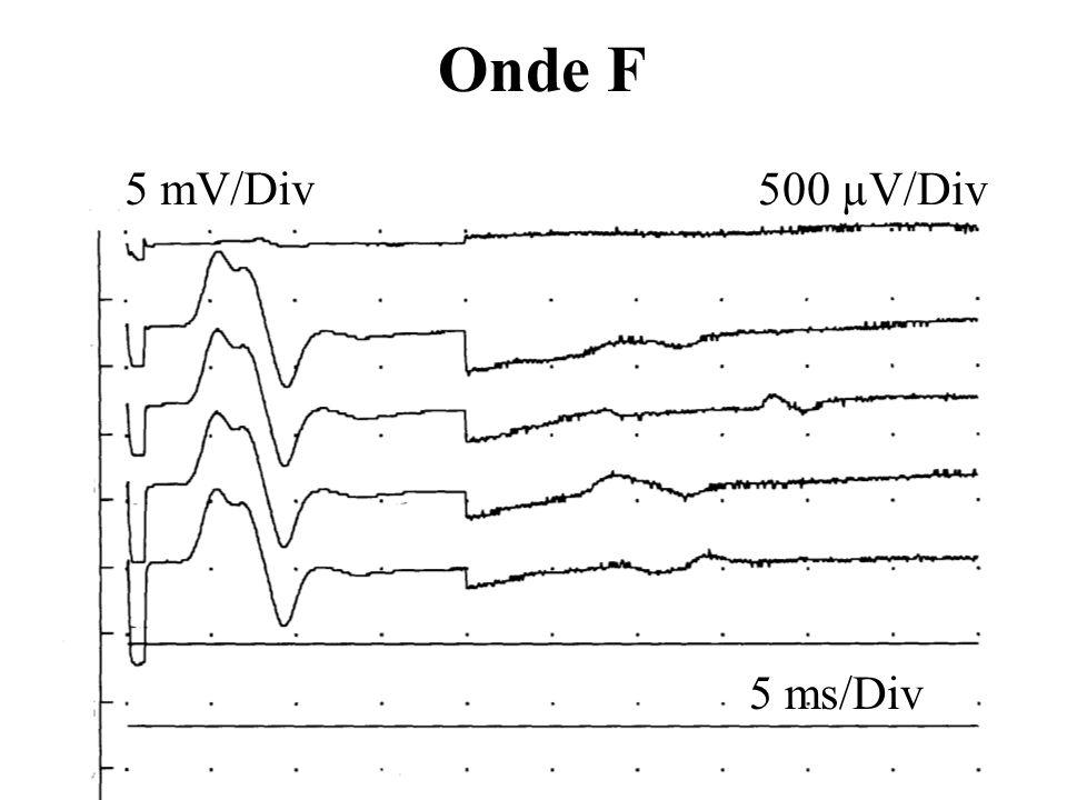 Onde F 5 ms/Div 5 mV/Div 500 µV/Div