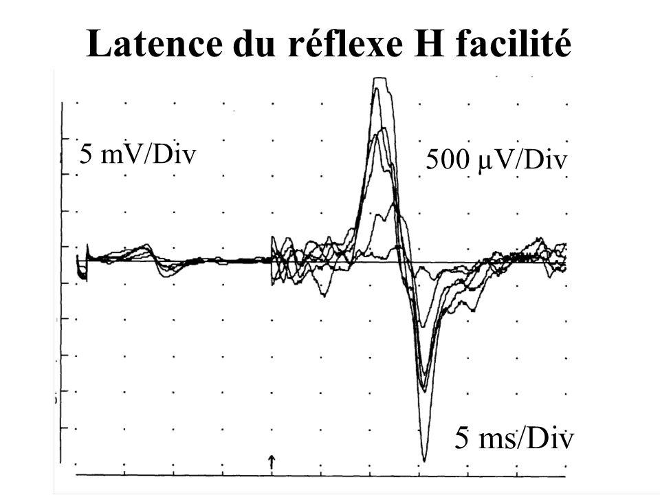5 ms/Div 500 µV/Div 5 mV/Div Latence du réflexe H facilité