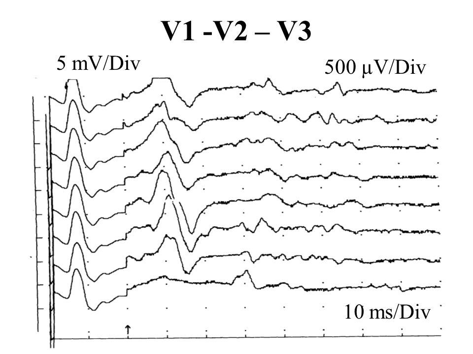 V1 -V2 – V3 10 ms/Div 5 mV/Div 500 µV/Div