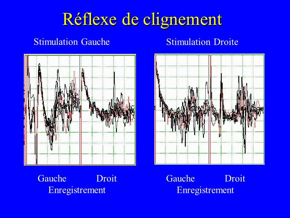 Réflexe de clignement Stimulation Gauche Stimulation Droite Gauche Droit Enregistrement Gauche Droit Enregistrement