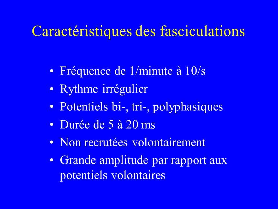 Caractéristiques des fasciculations Fréquence de 1/minute à 10/s Rythme irrégulier Potentiels bi-, tri-, polyphasiques Durée de 5 à 20 ms Non recrutée