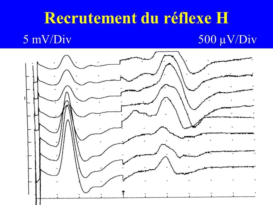 Recrutement du réflexe H 5 ms/Div 5 mV/Div500 µV/Div