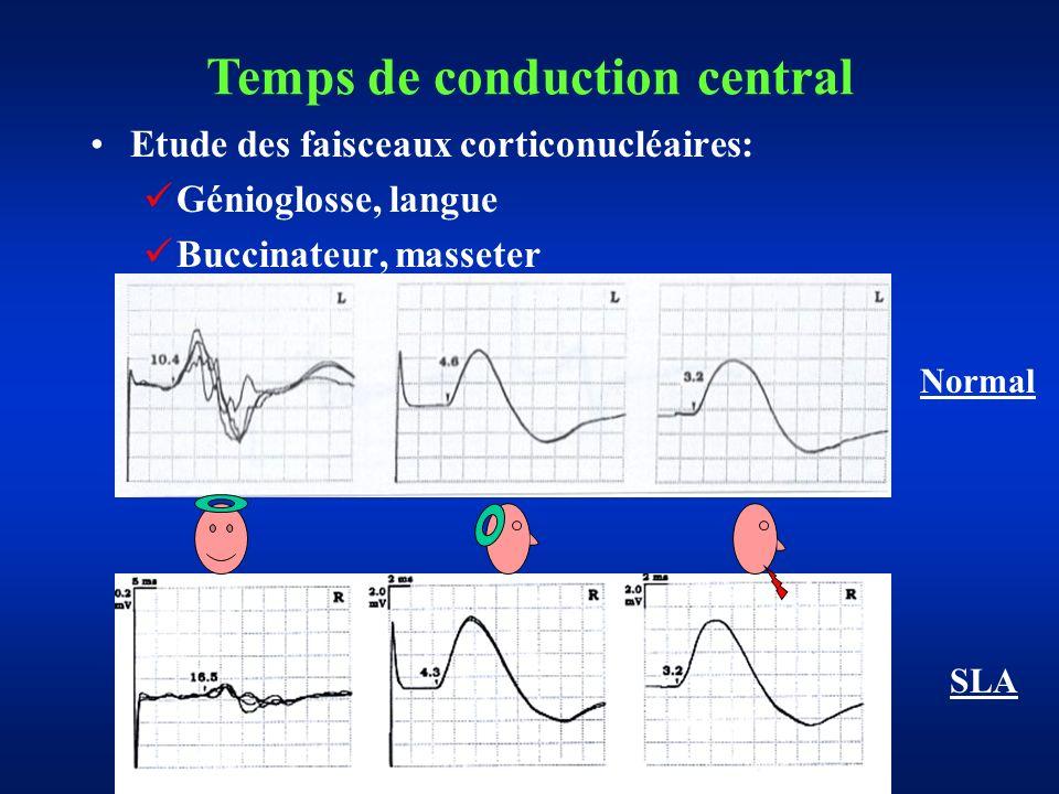 Etude des faisceaux corticonucléaires: Génioglosse, langue Buccinateur, masseter Temps de conduction central Normal SLA