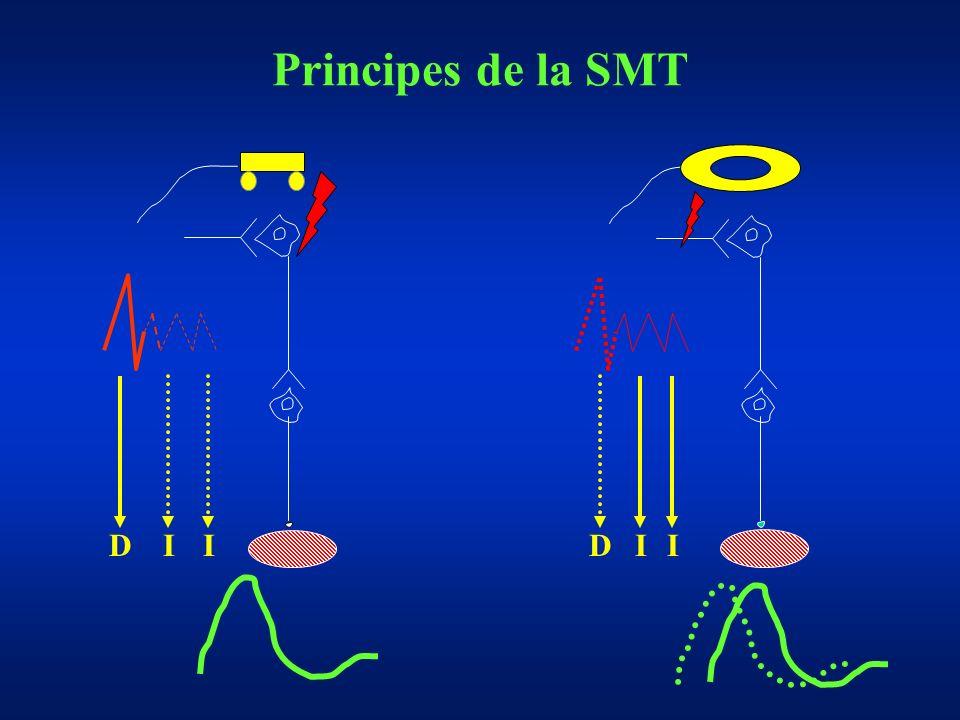 Principes de la SMT DIIDII