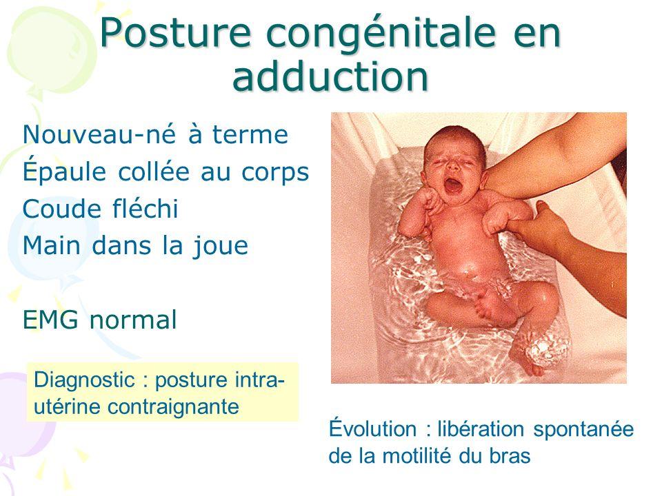 Posture congénitale en adduction Nouveau-né à terme Épaule collée au corps Coude fléchi Main dans la joue EMG normal Diagnostic : posture intra- utéri