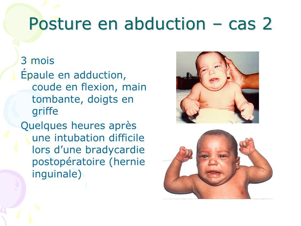 Posture en abduction – cas 2 3 mois Épaule en adduction, coude en flexion, main tombante, doigts en griffe Quelques heures après une intubation diffic