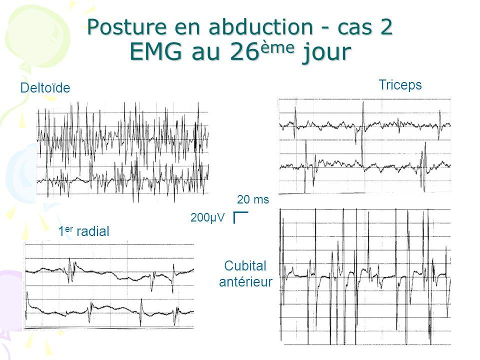 Posture en abduction - cas 2 EMG au 26 ème jour 20 ms 200µV Deltoïde Triceps 1 er radial Cubital antérieur