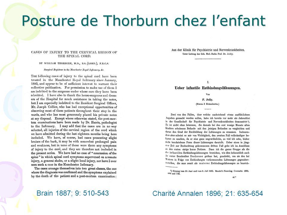 Posture de Thorburn chez lenfant Brain 1887; 9: 510-543 Charité Annalen 1896; 21: 635-654