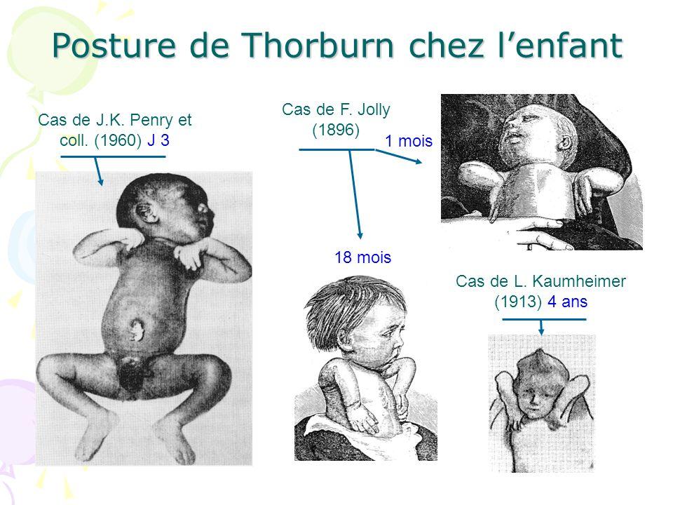Posture de Thorburn chez lenfant Cas de L. Kaumheimer (1913) 4 ans Cas de J.K. Penry et coll. (1960) J 3 Cas de F. Jolly (1896) 1 mois 18 mois