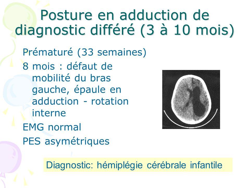 Posture en adduction de diagnostic différé (3 à 10 mois) Prématuré (33 semaines) 8 mois : défaut de mobilité du bras gauche, épaule en adduction - rot